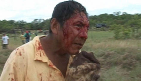 Raposa Indigenous After Attack