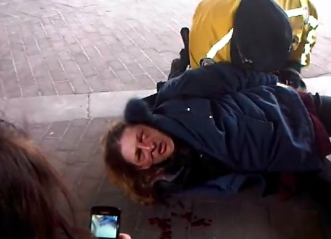 Police brutality at Occupy Toronto